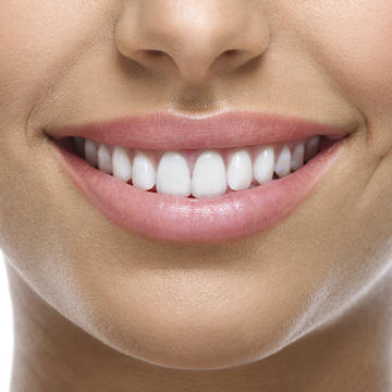 Prospect Teeth Whitening
