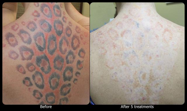 Vanish Laser Tattoo Removal and Skin Aesthetics | DataSphere